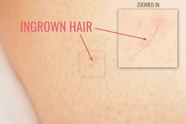 example of ingrown hairs on legs